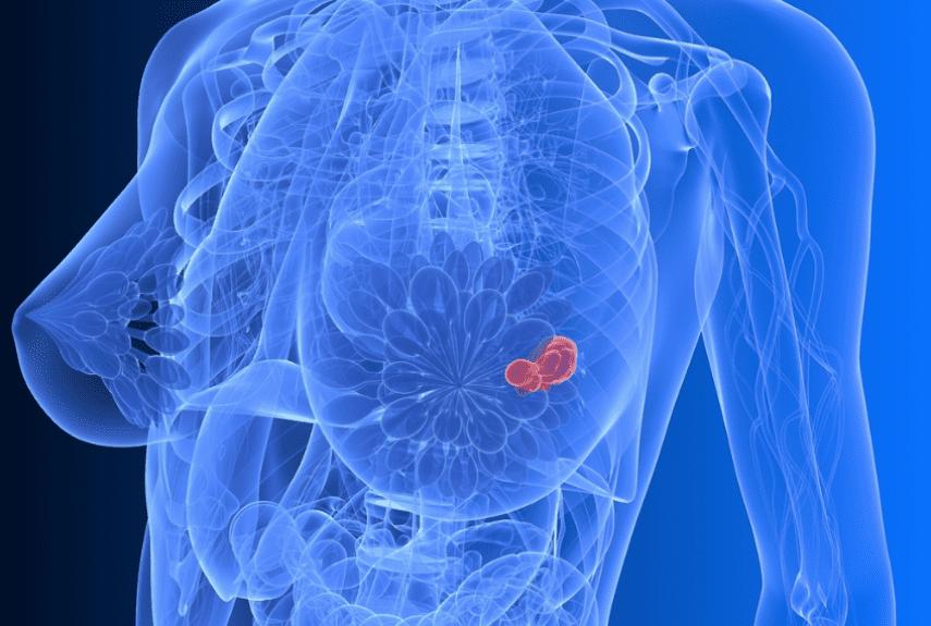 Профилактика и диагностика рака молочной железы